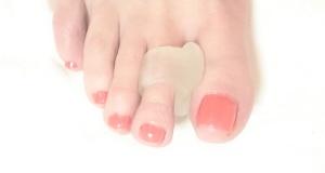 avlastningar-hälsporre-liktorna-hallux-valgus-nageltrång